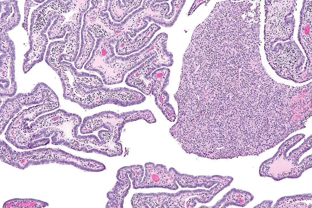 Intermediate magnification micrograph of acute and chronic salpingitis. H&E stain.