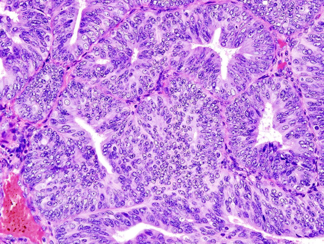 A histologic view of an endometrial adenocarcinoma showing many abnormal nuclei.