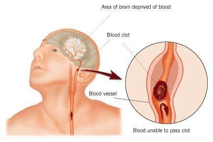 Stroke is the result of ischemia to an area of the brain.